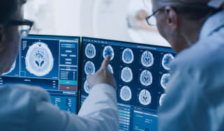 Medical professionals examining brain scans on a display