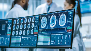 Medical images on multiple computer screens with doctors in the background