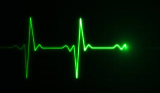 A green heart rate monitor symbol on a black background