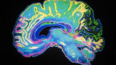 Image of brain with dark background